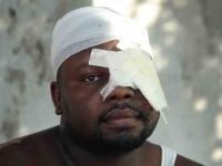 Bandagierter Mann, im Krankenhaus von Port-Au-Prince am 20.1.2010